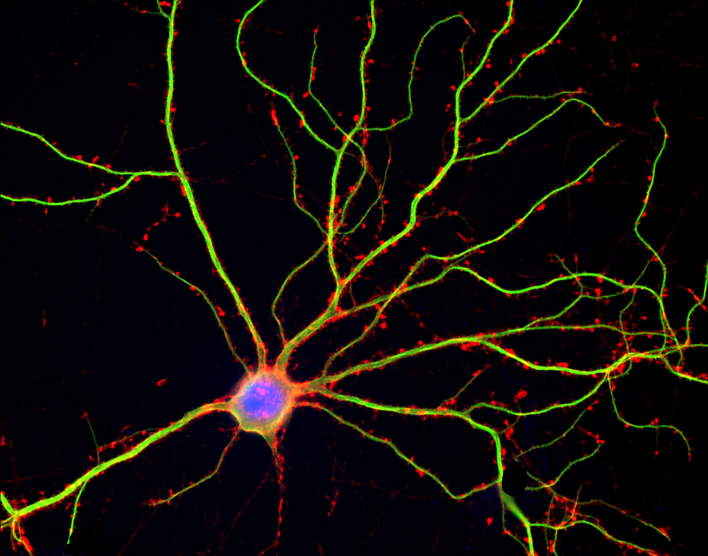 Mature neuron