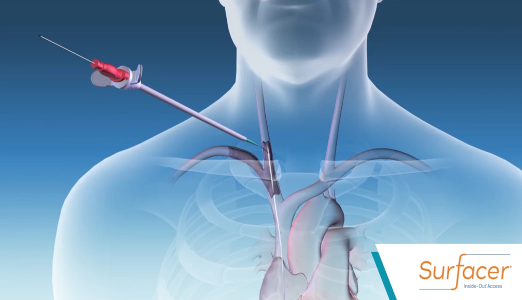 Merit Medical To Market Bluegrass Vascular S Catheter