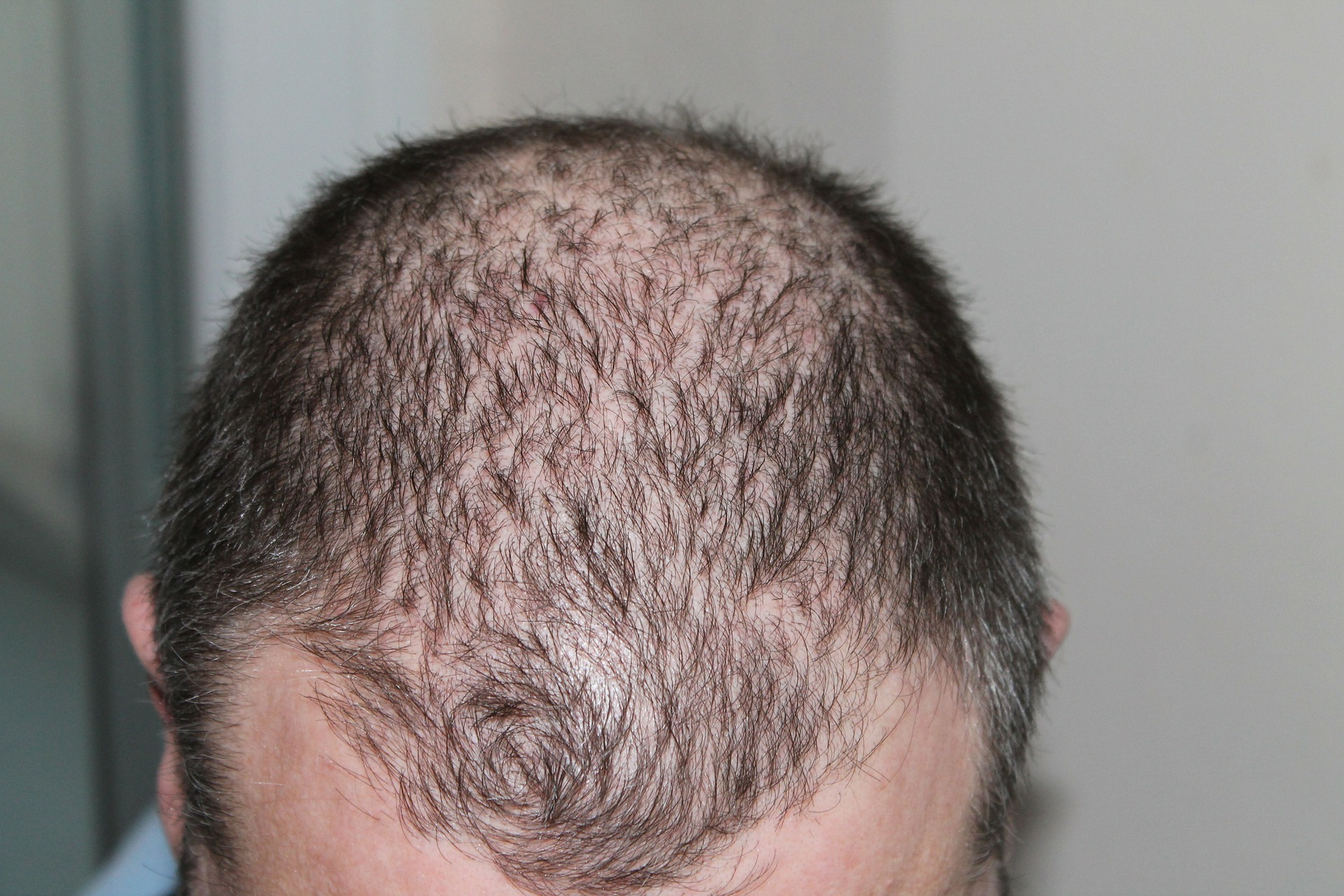 Replicel says hair loss therapy is safe, with glimmers of