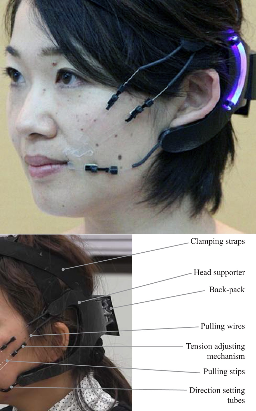 Still in development, The Robot Mask provides physical support to patients with facial paralysis.