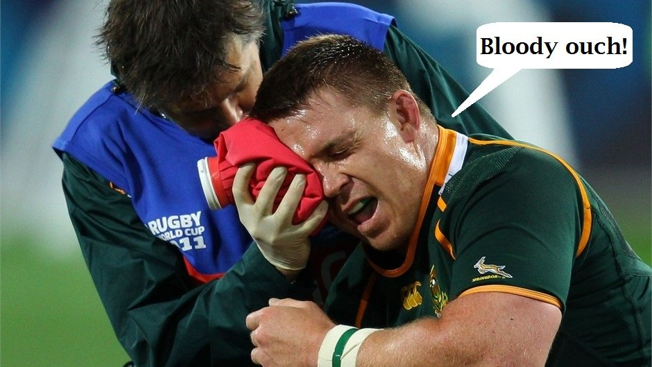 Rugby players are even more susceptible to injury as they traditionally do not wear helmets and body armor.