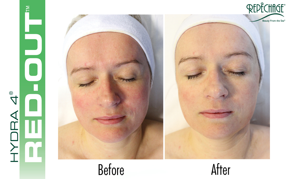 After one treatment of the Repêchage Hydra 4® Red-Out® Facial