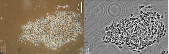 Fig. 2: Stem cells seen through a phase contract microscope (left) and through imec's lens-free microscope (right).