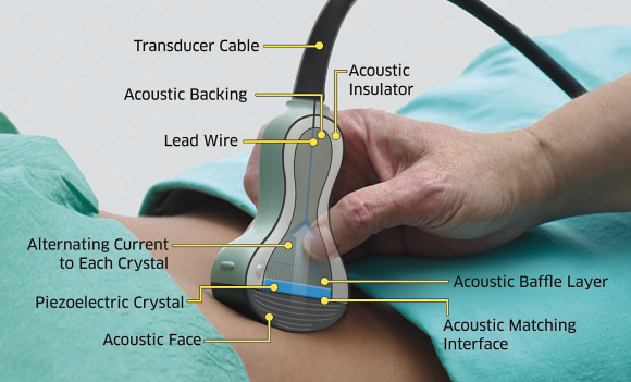 Fig. 2: An example of a medical imaging transducer used for abdominal scanning. The transducer uses Exelis PZT (lead zirconate titanate) material for the transducer acoustic module.  The piezoelectric effects are used to transmit and receive the high frequency signals that are interpreted by the electronics and software to create images of biological structures in the body.