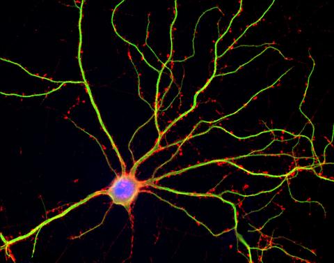 Neuron 2