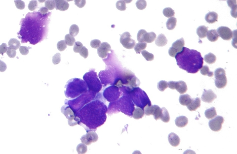 Micrograph of small cell lung cancer