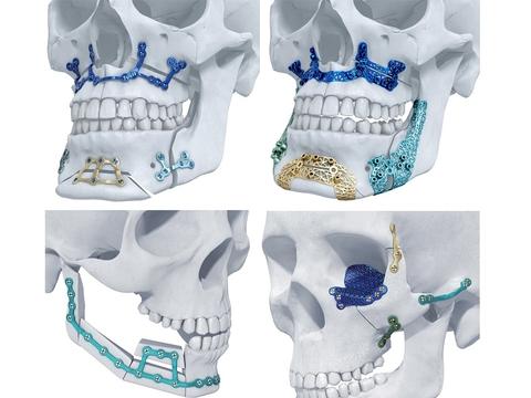 Variants.... This australian cranio maxillo facial have