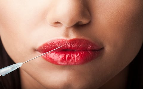 Botox Lips NikiLitov/iStock / Getty Images Plus