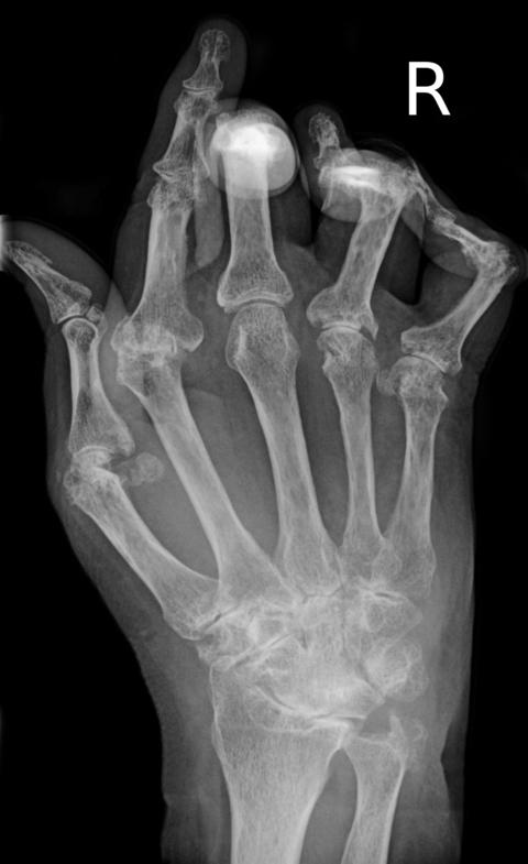 X-ray of the hand in rheumatoid arthritis