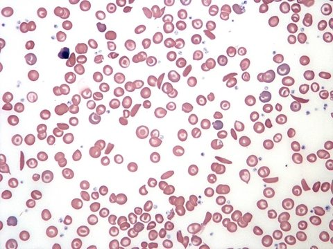 Sickle cell smear