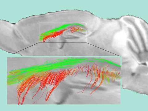 Alzheimer's white matter
