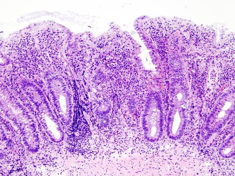 Ulcerative colitis.