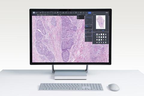 Roche digital pathology