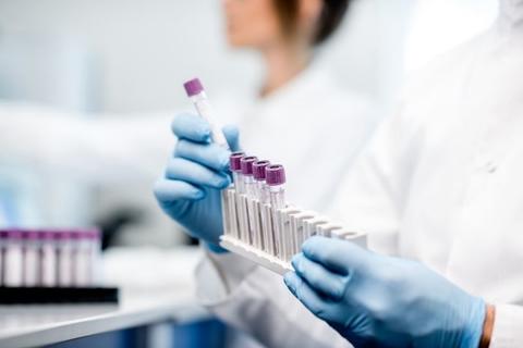 coronavirus test tubes