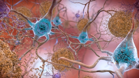 Artist rendering of amyloid and tau deposits associated with Alzheimer's disease