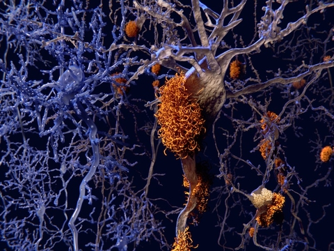 Illustration of Amyloid plaques around neurons alongside healthy neurons