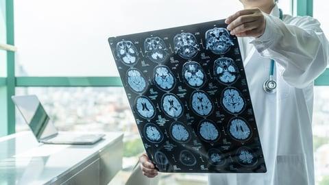 A neurologist reviews brain scans
