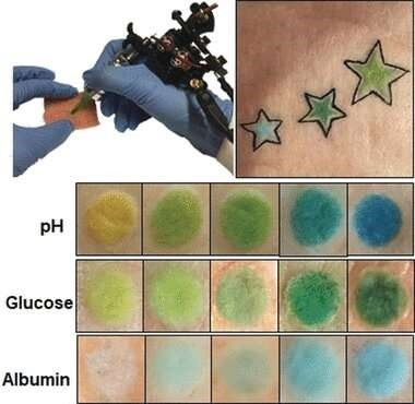 Scientists at Technical University of Munich, Germany developed tattoos that are colorimetric chemical sensors detecting changes in biomarkers. (Image Source: Wiley)