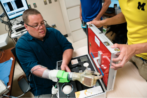 Faint nerves give amputees control of robotic hand