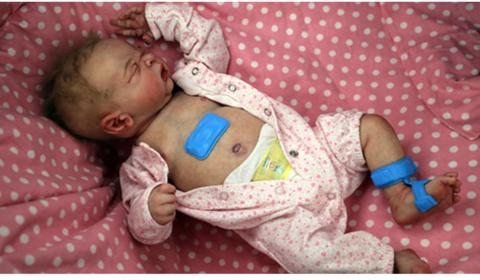 Northwestern U develops medical sensors for newborns