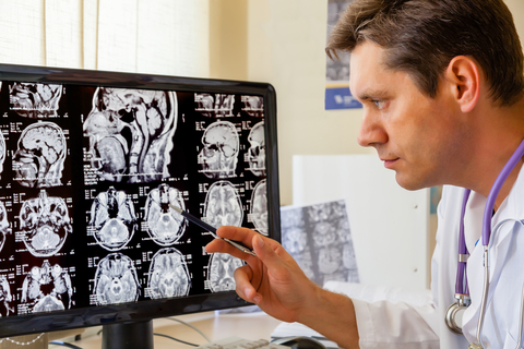 Researcher looking at brain images