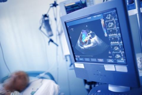 Cardiac ultrasound