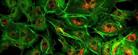 Flow Imaging Microscopy A Worthy Market | FierceElectronics