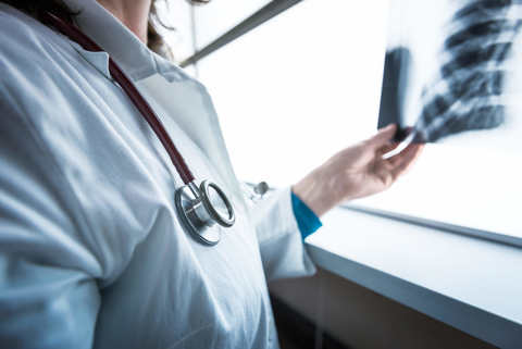 Artificial Intelligence Is Transforming Radiology But It Still Can