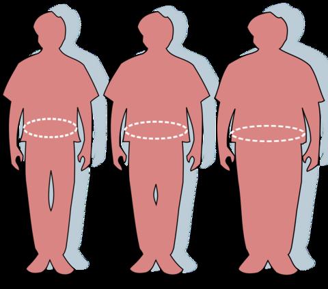 Obesity