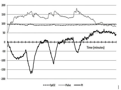 PI Trend during a 30 minute, 3-interval stationary bicycle exercise.