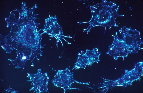 Cancer cells in electron microscope scan