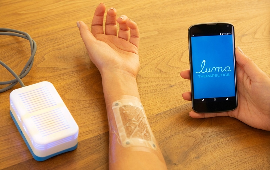 Luma launches light-based telehealth treatment for psoriasis