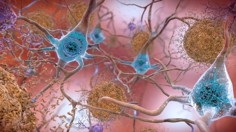 A safer Alzheimer's drug than Biogen's aducanumab? Denali-WashU drug shows better profile in mice