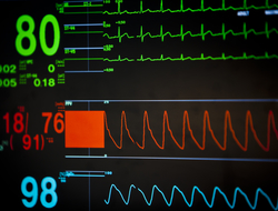 A close-up photo of a vital signs monitor