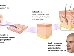 diagram showing how SkinTE is made