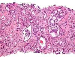 Micrograph showing the most common prostate cancer