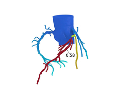 3D, color-coded map of the coronary arteries showing blood flow