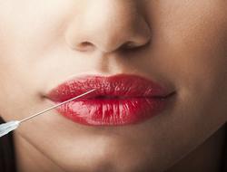 Botox Lips NikiLitov/iStock / Getty Images Plus