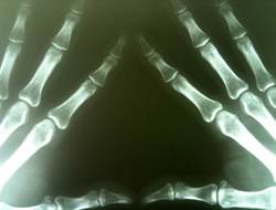 x-ray of hand bones