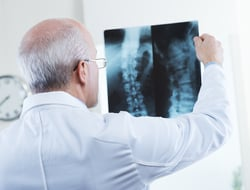 doctor looking at x-ray of spine