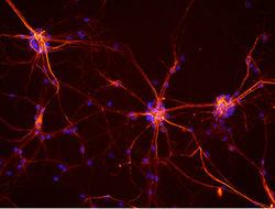 Mouse Neurons
