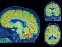 Martinostat imaging of the human brain