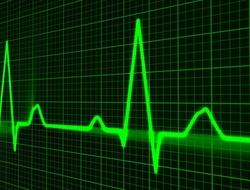 EKG rhythm