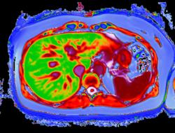 LiverMultiScan image