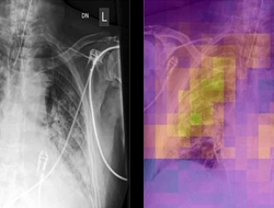 AI scans chest X-rays for covid