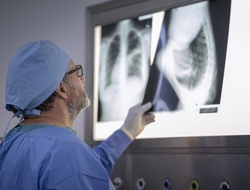 chest x-ray radiologist