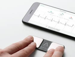 AliveCor KardiaMobile