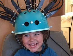 Brain scanner has bike helmet design to ease measurement