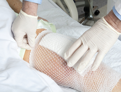 Knee replacement being put in place