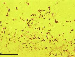 pneumococcal virus microscope image